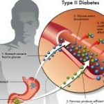 Can you break the cycle of type 2 diabetes?   TapGenes