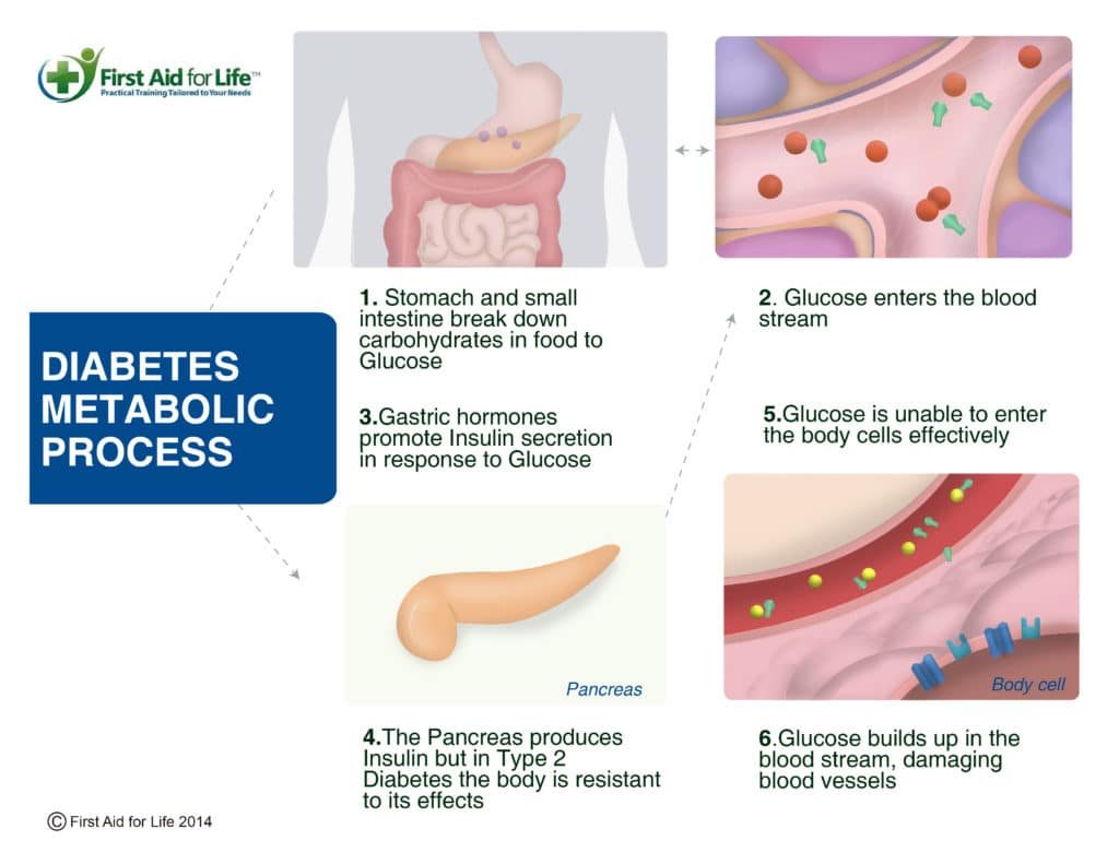 Diabetes – The signs and symptoms and how to help