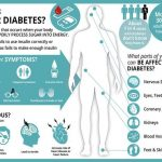 Diabetes type 2 warning - the two sexual symptoms of high blood sugar you  shouldn't ignore - genpill.info