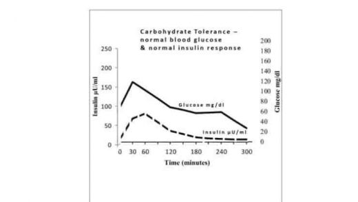The Three Stages of Carbohydrate Intolerance – before type 2 diabetes