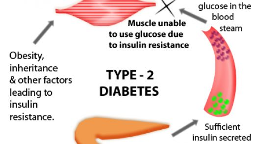 Type 2 Diabetes Causes, Symptoms, Diagnosis and Treatment | Natural Health  News