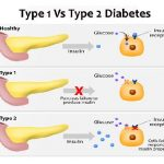 Diabetes Can Be Cured Permanently