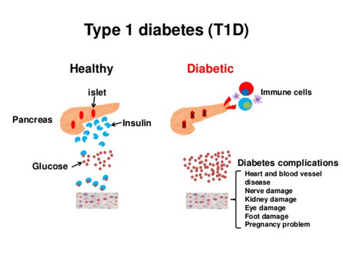Difference between Type 1 and Type 2 Diabetes Mellitus - (Updated - 2021)