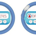 Difference Between Type 1 and Type 2 Diabetes (with Comparison Chart) - Bio  Differences