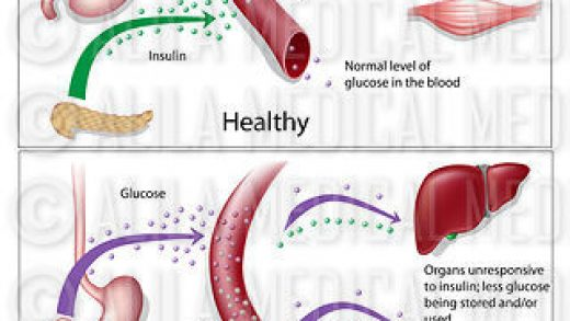 Diabetes type 1 and type 2 - Medical Information Illustrated