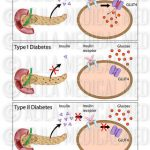 Diabetes causes and symptoms - Medical Information Illustrated