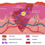 Wound Healing and the Immune System - Science in the News