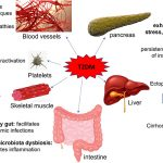 Frontiers   The Effects of Type 2 Diabetes Mellitus on Organ Metabolism and  the Immune System   Immunology