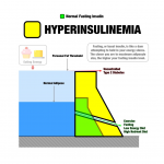 Insulin resistance and hyperinsulinaemia and metabolic syndrome –  resilience health