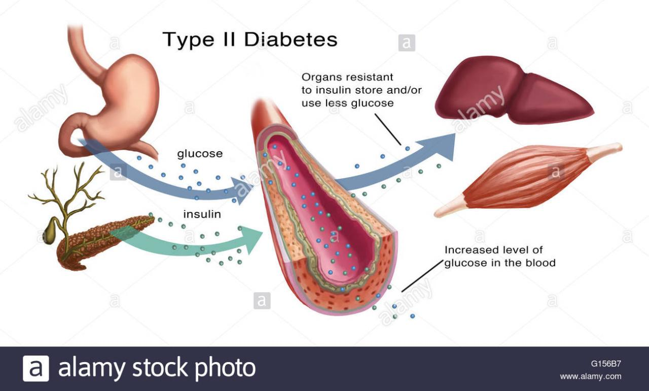 Illustration of insulin and glucose production in Type 2 diabetes. Insulin  is produced by islet cells in the pancreas, and acts in unison with glucose  to regulate energy in the body's cells.