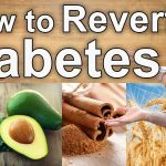 How to Reverse Diabetes Naturally – Natural Treatments for Diabetes -  YouTube