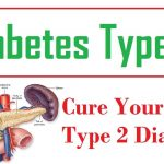 Diabetes Type 2 Permanent Cure - How To Reverse Type 2 Diabetes Naturally -  YouTube