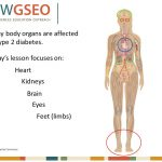 Anatomy and physiology of t2d Lesson Five Today we will… Make a human body  poster that shows how t2d affects organs and body systems Look at  treatment. - ppt download
