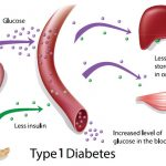 Type 1 diabetes: basis of causes and away of prevention   International  Network for Natural Sciences