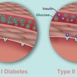 Diabetes: The Difference between Type 1 and Type 2 Diabetes   Visual.ly