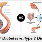 Managing Diabetes: What You Need To Know