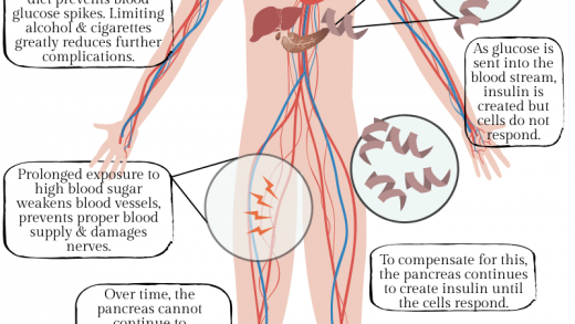 Controlling the Progression of Diabetic Neuropathy with Nutrition
