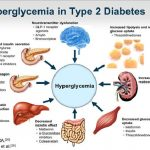 What Are The Signs Of Type 2 Diabetes