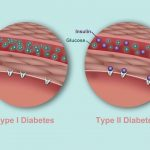 What's the Difference Between Type 1 and Type 2 Diabetes?   Diabetes Center    Everyday Health