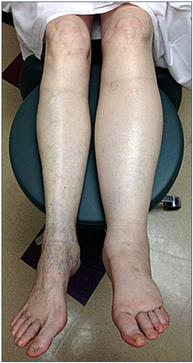Pathophysiology of edema in patients with chronic venous insufficiency -  Servier - PhlebolymphologyServier – Phlebolymphology