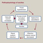 Portal hypertension and ascites - ScienceDirect