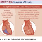 The Relationship Between the Right Ventricle and its Load in Pulmonary  Hypertension - ScienceDirect