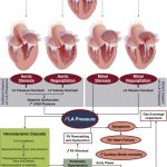 Pulmonary Hypertension in Valvular Disease: A Comprehensive Review on  Pathophysiology to Therapy From the HAVEC Group - ScienceDirect