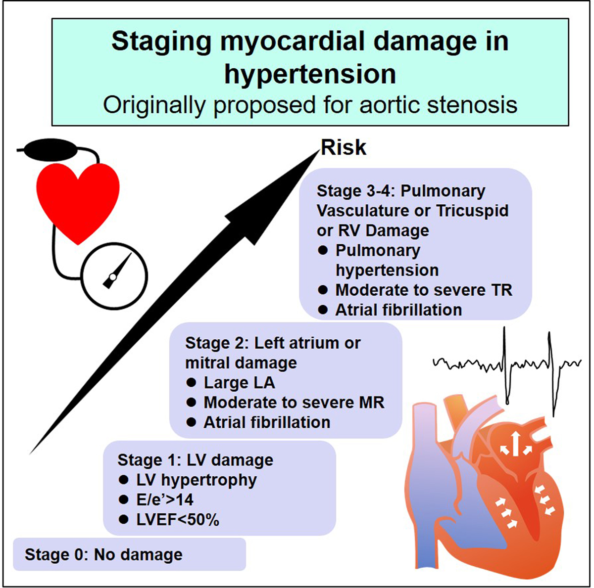 Staging Cardiac Damage in Patients With Hypertension   Hypertension