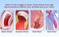 What is High Blood Pressure?   American Heart Association