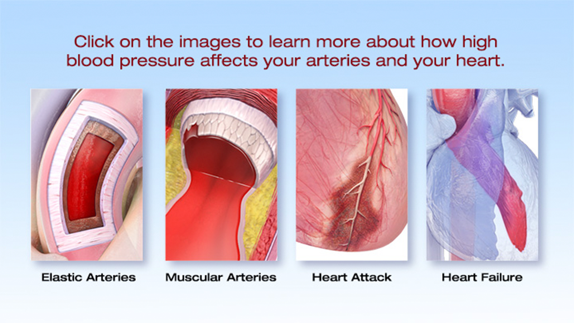 What is High Blood Pressure? | American Heart Association