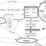 The relationship between obesity and hypertension: an updated comprehensive  overview on vicious twins | Hypertension Research