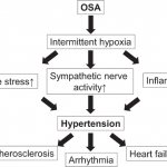 Recent advances in the management of secondary hypertension—obstructive sleep  apnea | Hypertension Research