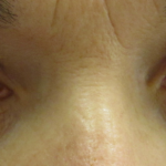 Ocular hypertension: what is it, symptoms, causes, prevention and treatment    Top Doctors