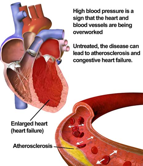 Hypertension is So Common That Almost Everyone is Affected at Some Point –  Hello Heart