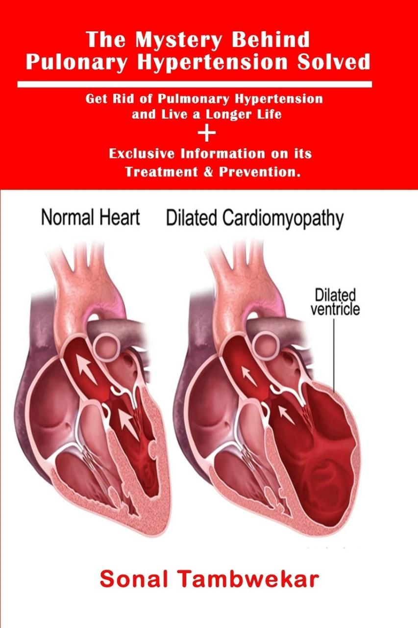 Current concepts of pulmonary arterial hypertension pathogenesis and... |  Download Scientific Diagram