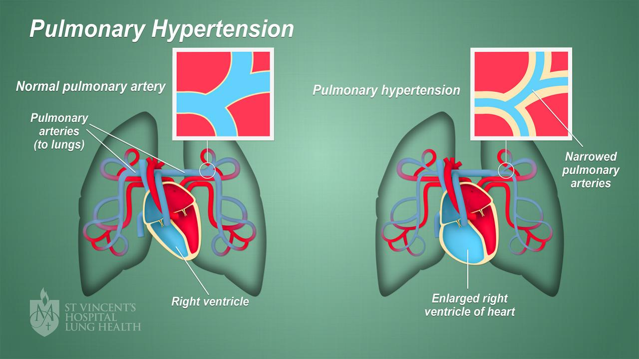 Pulmonary Hypertension - St Vincent's Lung Health