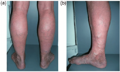 A 69-year-old man presented with typical changes of chronic venous... |  Download Scientific Diagram