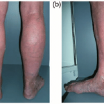A 69-year-old man presented with typical changes of chronic venous...    Download Scientific Diagram