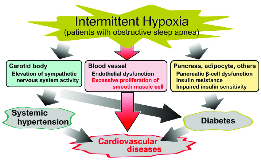 Cause and effect diagram of obstructive sleep apnea (OSA)-related...    Download Scientific Diagram