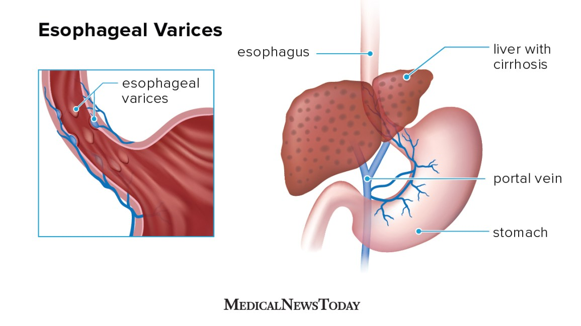 What are esophageal varices? Types, treatments, and more
