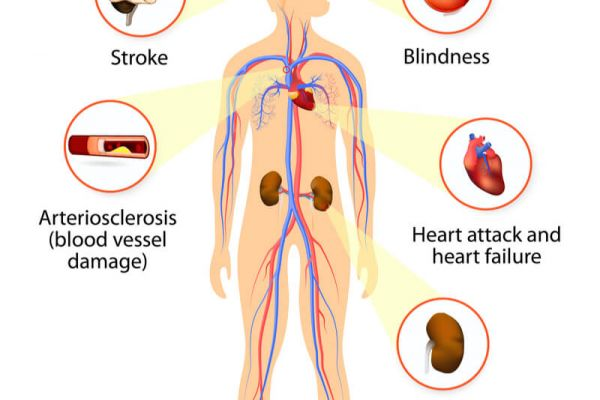What is hypertension and how does it affect the body health? Symptoms,  Causes & Risk Factor - Vigourfact