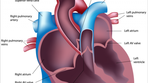 Types of Pulmonary Hypertension: WHO Groups 1, 2, 3, 4 & 5