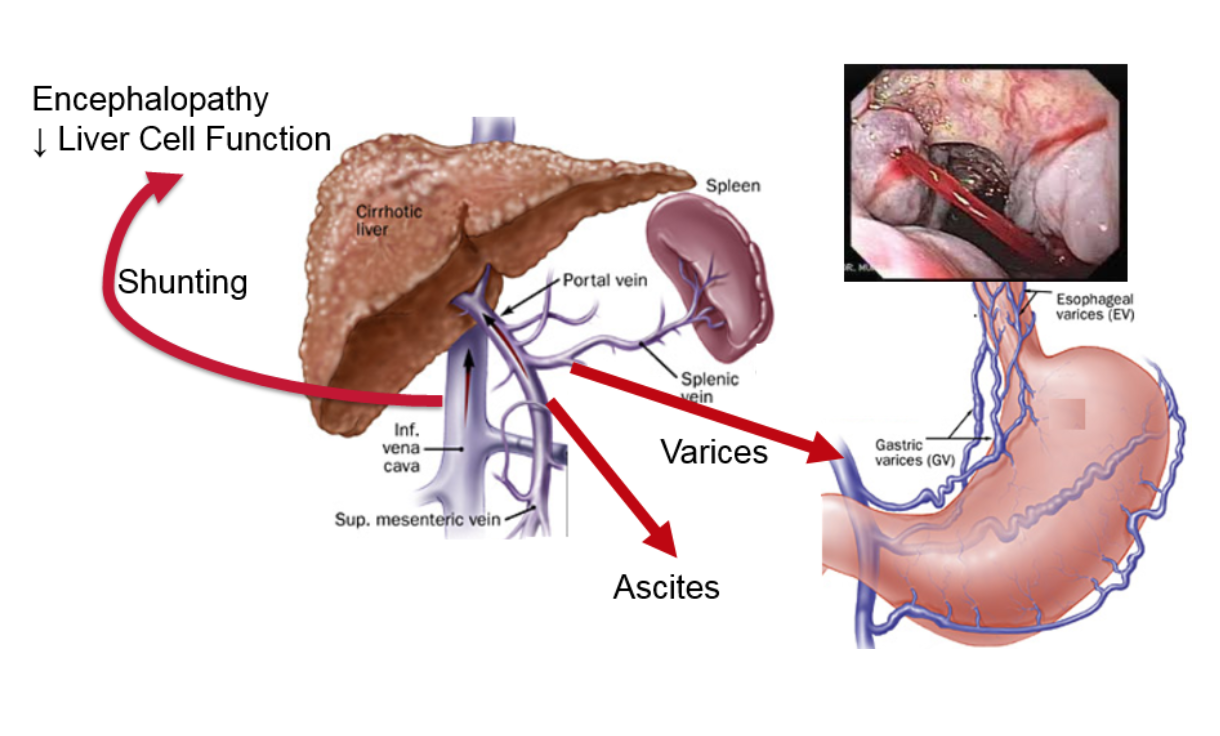 Portal hypertension and why it's important • NASH & Liver Fibrosis |  Galectin Therapeutics