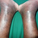 Showing signs of bilateral venous hypertension with oedema and...    Download Scientific Diagram