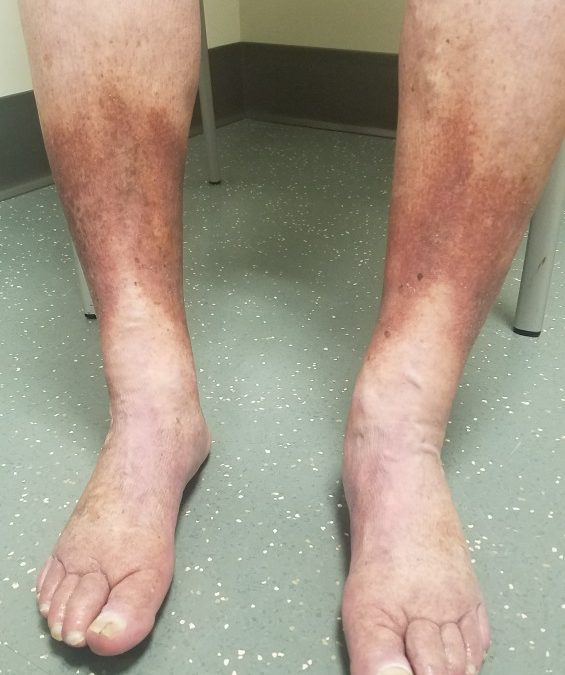 Chronic venous Insufficiency: Signs, Diagnosis and Treatment