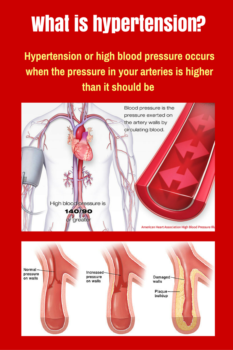 Why hypertension is an invisible killer?
