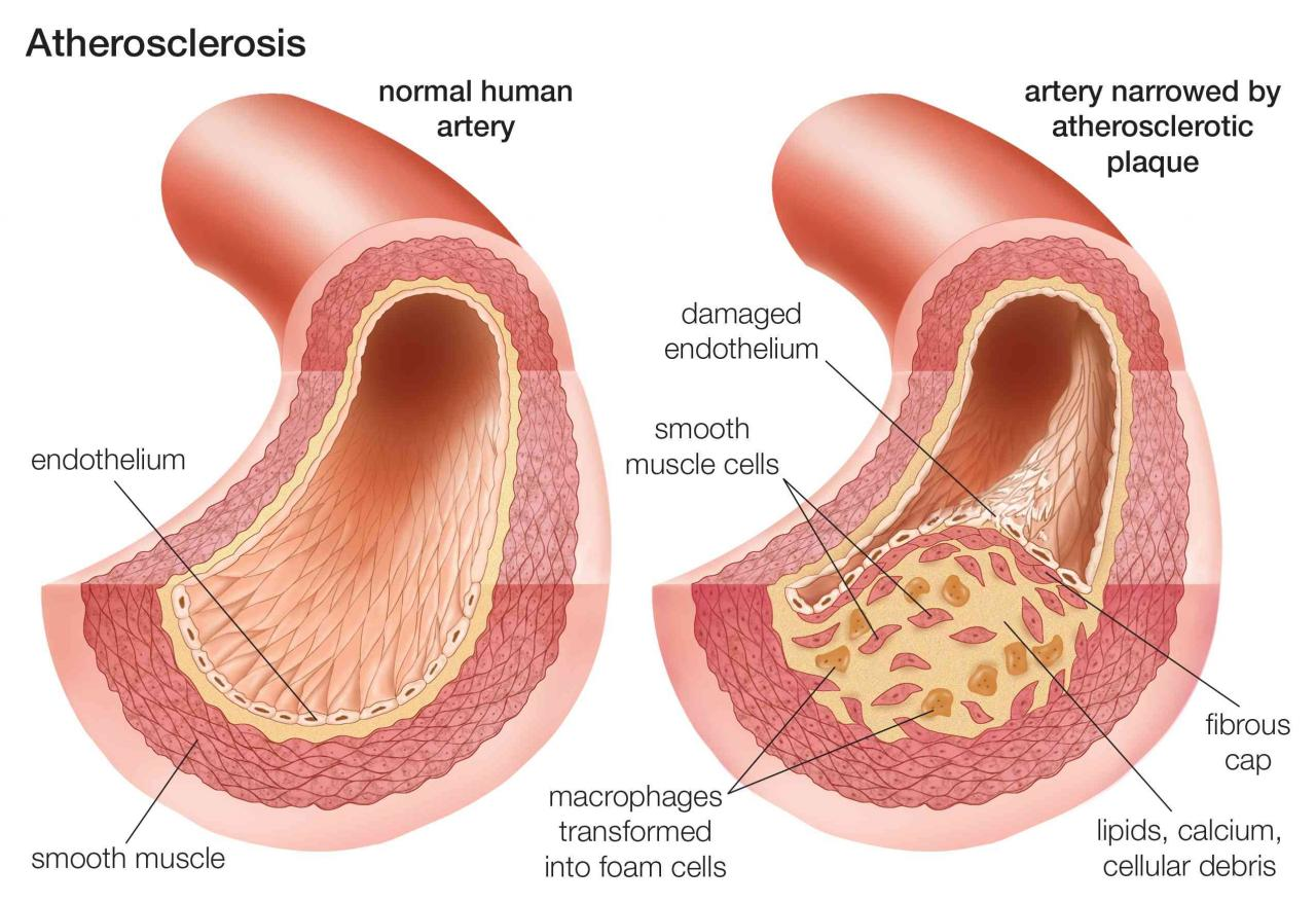 An Overview of Atherosclerosis
