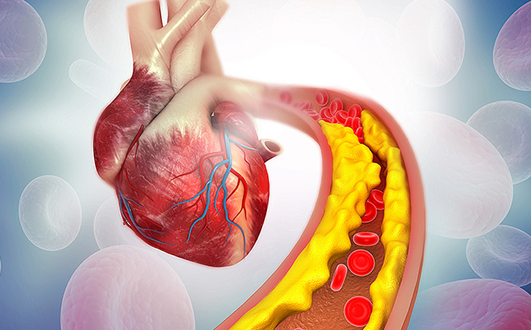 Atherosclerosis (Plaque Buildup) : How It Can Lead to a Heart Attack -  HealthXchange