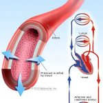 11 High Blood Pressure Causes, Symptoms, Diet, and Treatment