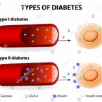 Diabetes and Alcohol: How Drinking Can Influence Blood Sugar